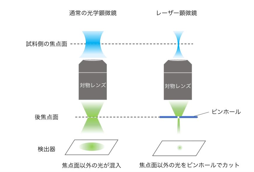 レーザー顕微鏡と光学顕微鏡の違い